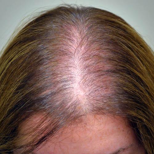 mulher com queda de cabelos